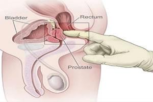 Twitter eskortere prostata massage